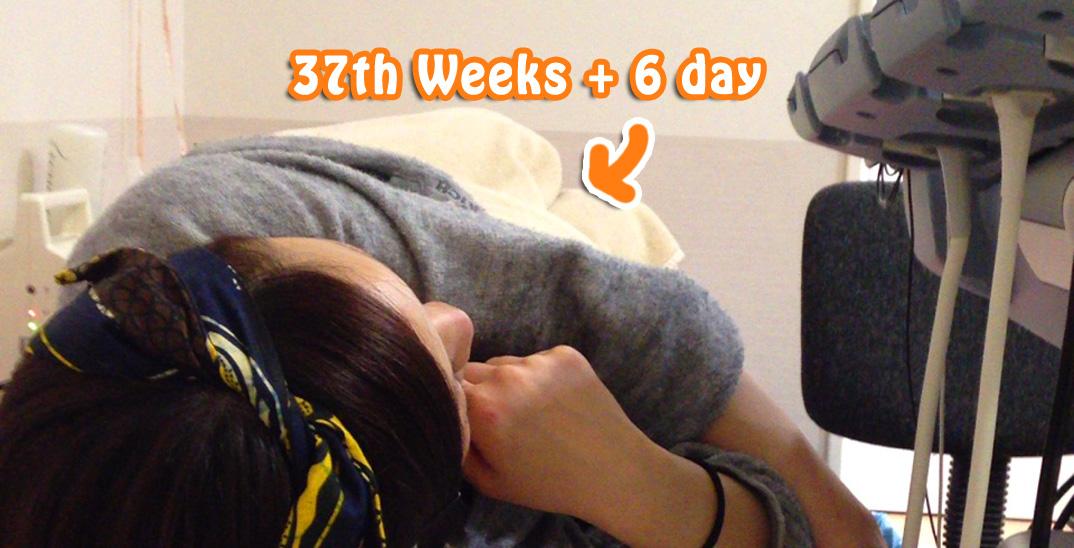 妊娠37週と6日目、推定体重3,561gに!子宮の入口を柔らかくする点滴を。