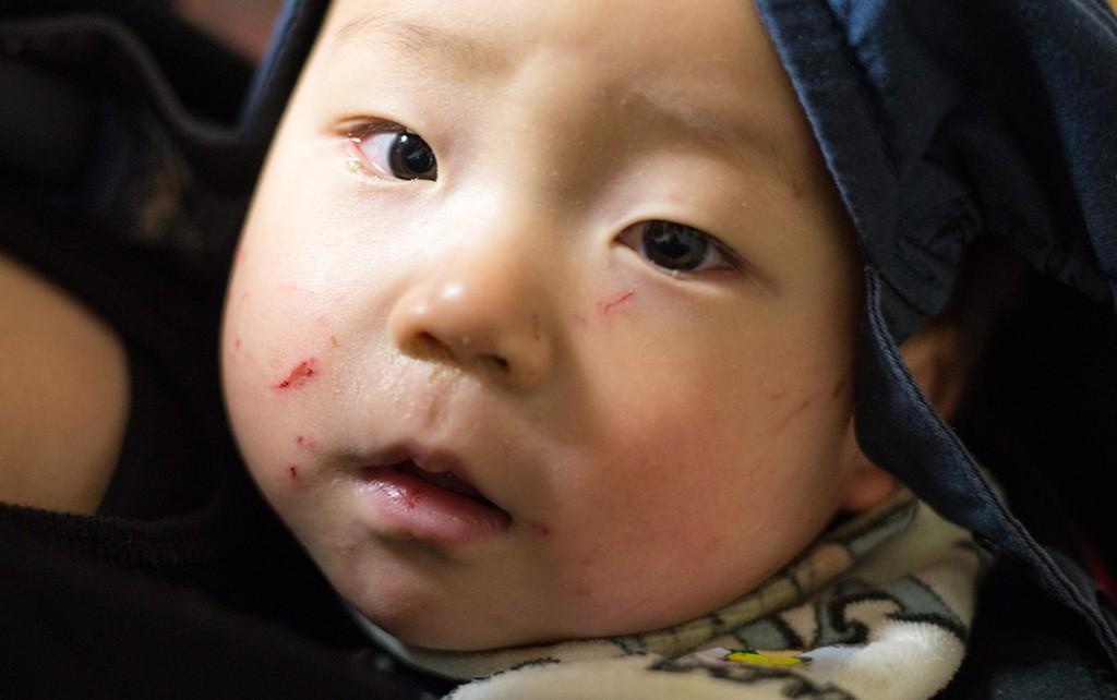 生後10ヶ月、保育園で顔じゅう傷だらけ。皆さん爪はしっかり切りましょう。