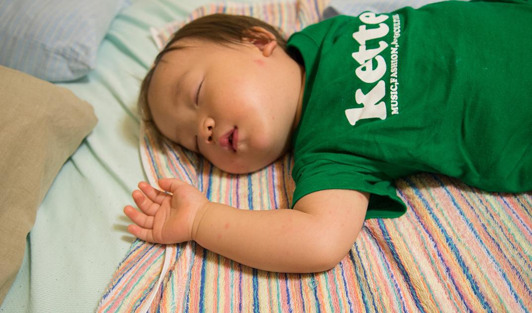 1歳4ヶ月、息子が2度目の手足口病に!保育園で再び流行。そしてまた父親にも感染の予兆が……。