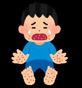 手足口病に感染した子ども