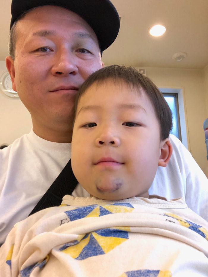 パパに抱かれて病院で待つ息子(4歳)