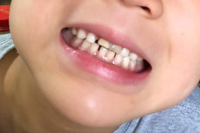 歯と歯の間が広がってきた