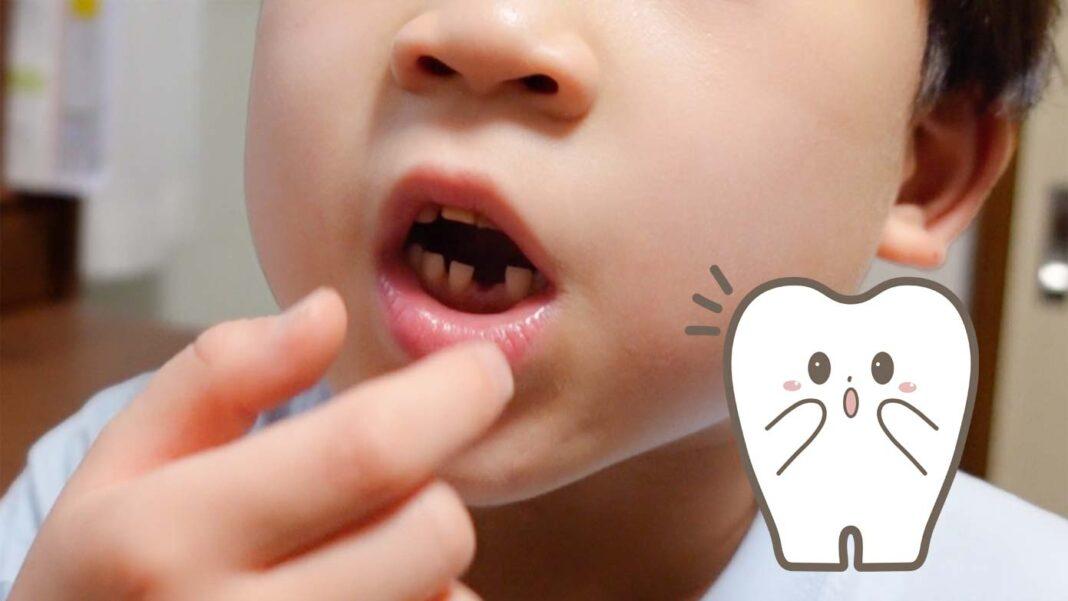 子どもの歯が初めて抜けました