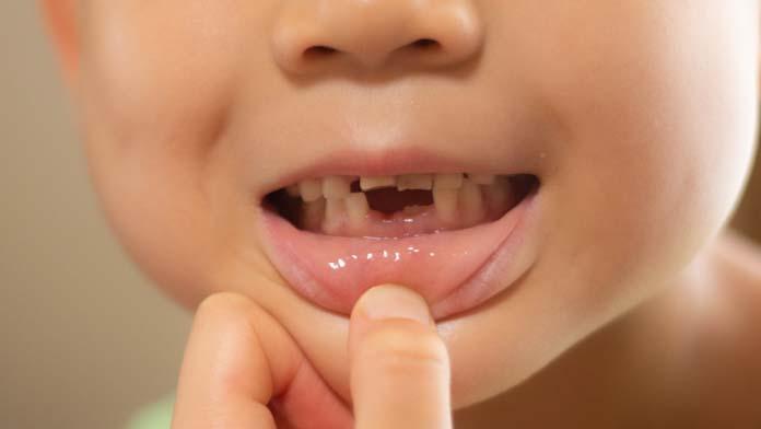 永久歯が初めて生えた!
