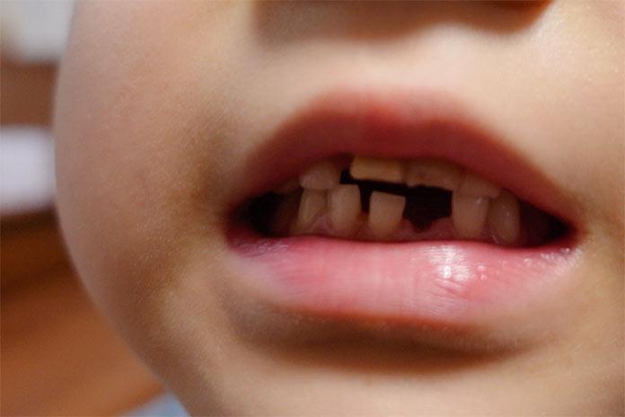 初めて歯が抜けた前歯